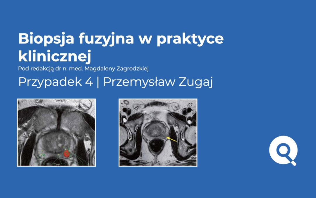 Biopsja fuzyjna w praktyce klinicznej | Przypadek 4