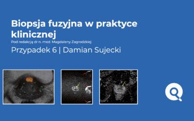 Biopsja fuzyjna w praktyce klinicznej | Przypadek 6